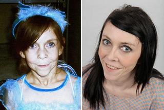 В Америке провели пластическую операцию девочке с синдромом «Бенжамина Баттона»