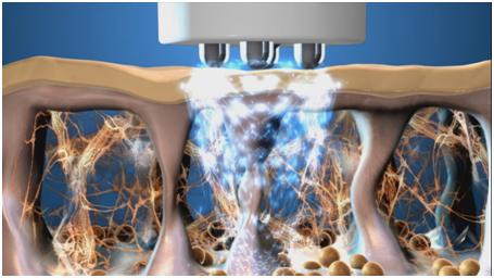 Обучающее видео: процедура TriPollar на аппарате geneO+ от Pollogen