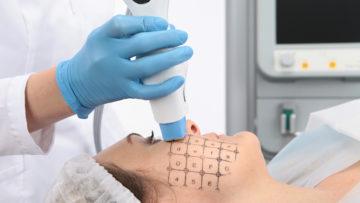 Обеспечить качественный термолифтинг кожи может аппарат Thermage
