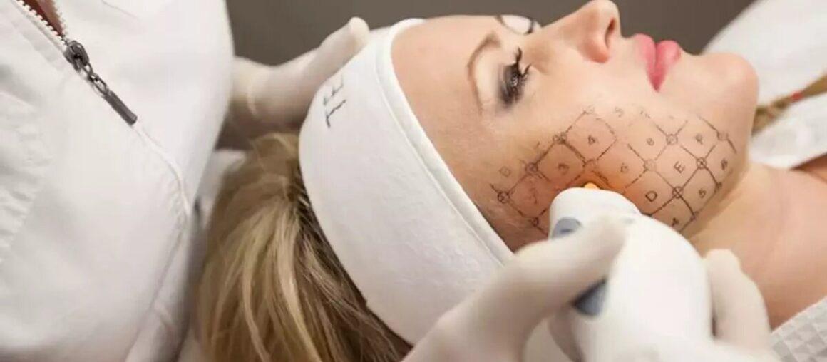 Виды современных косметологических аппаратов