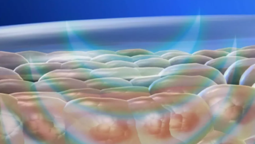 NeoMassage — технология аппаратного вибромассажа