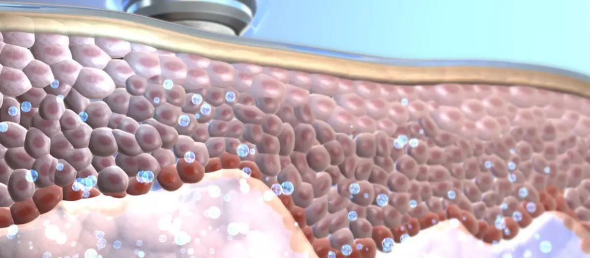 OxyGeneo - технология неинвазивной оксигенации
