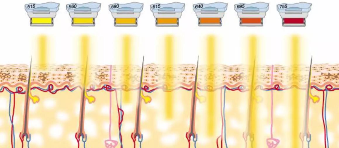 Технология IPL - интенсивного импульсного света