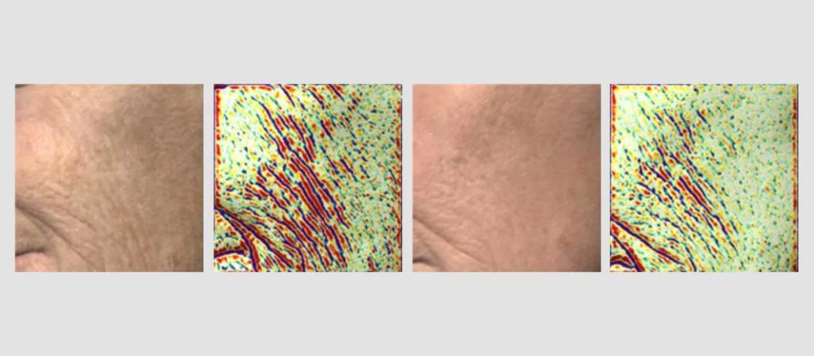 Технология поверхностного сканирования