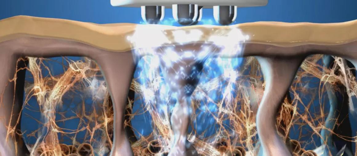 Технология RF-терапии