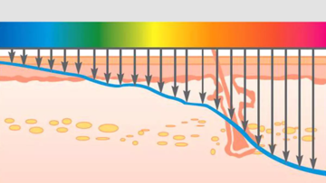 Селективный фототермолиз