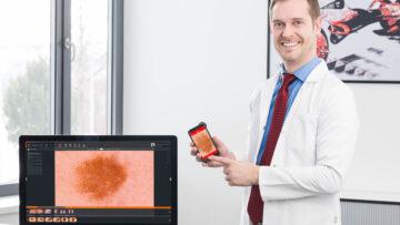 Цифровой анализ изображений: как работают дерматоскопы