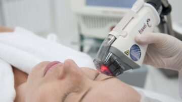 Прогноз популярности процедур фракционного фототермолиза