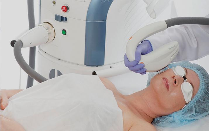 Аналаиз эффективности модуля M22 ResurFX при лечении стрий