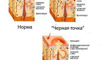 Наиболее распространенные заблуждения о механической чистке лица
