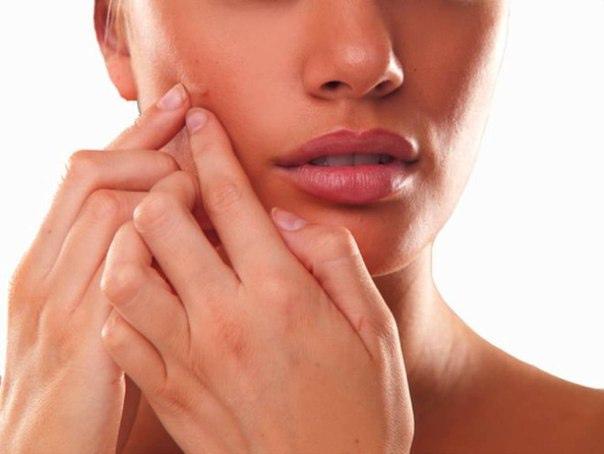 Очистка кожи при возрастном акне у женщин