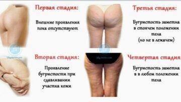 Стадии развития и эффективное лечение целлюлита