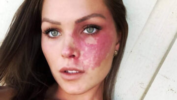 Проблемы при лечении пламенеющего невуса